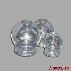 Hot Cupping Set - SM Toy