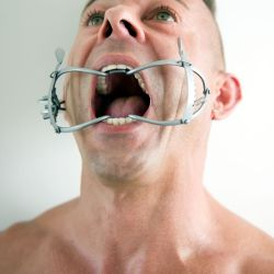 Mouth Spreader